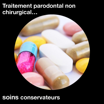 Traitement-parodontal-non-chirurgical